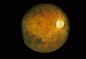 Bull's Eye Maculopathy / Chloroquine - Retina Image Bank