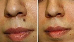 Image Gallery mole removal on face
