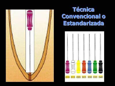 endodoncia preparacion biomecanica