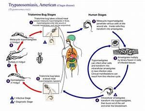 Diagram Of Megaesophagus : chagas disease more like lyme disease than aids the ~ A.2002-acura-tl-radio.info Haus und Dekorationen