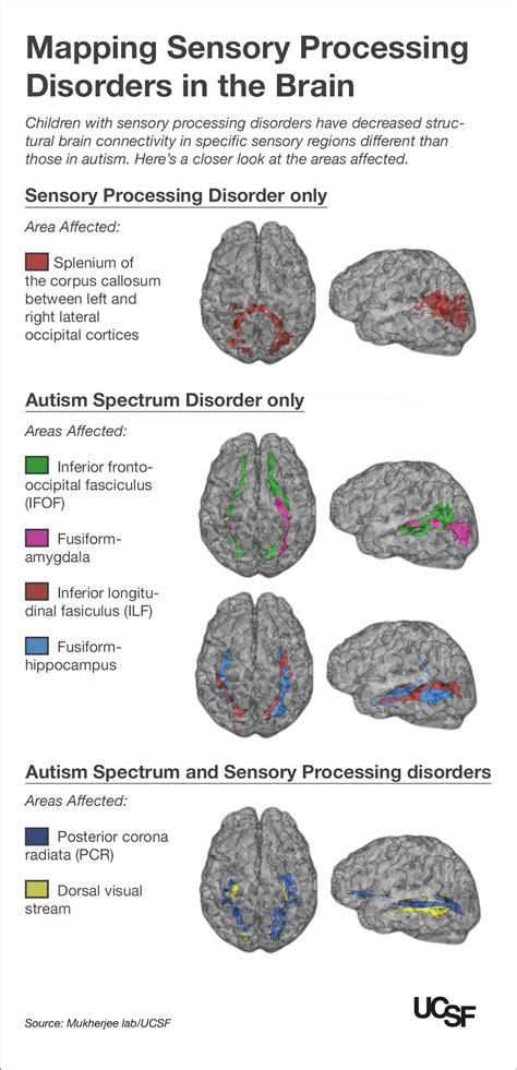 with autism sensory processing disorders show brain 786 | spdmapping3