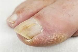 Лечение грибка ногтей горчицей