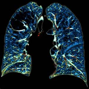 Interstitial lung disease - Israel- PDF - PPT- Case Reports - Symptoms ... Interstitial lung disease