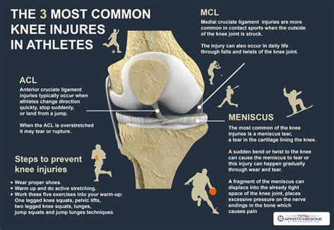 The 3 most common knee injuries in athletes (With images