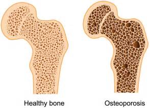 Exercises for osteoporosis - Hong Kong Chiropractor Osteoporosis