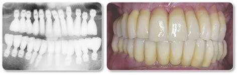 bicon dental implants introduction   bicon system