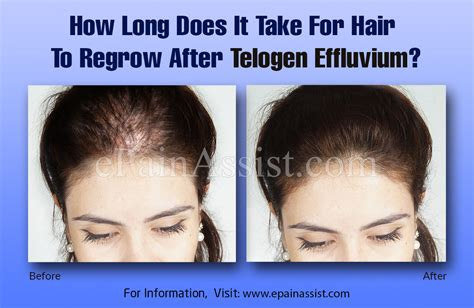 How Long Does It Take For Hair To Regrow After Telogen