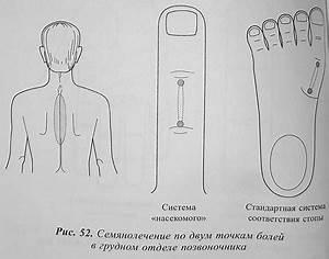 Лечение артроза по су джок