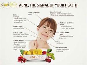 Hormonal Acne Tips  What Your Acne Says About Your Health