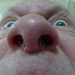 Hairy Nose Free Stock Photo