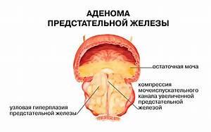 Народные средства лечения от рака простаты 3 стадии