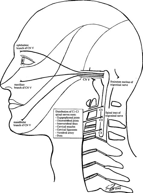 Figure 1 from Cervicogenic headaches: a critical review