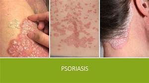 Psoriasis VS Eczema, Which One Are You Suffering From ...