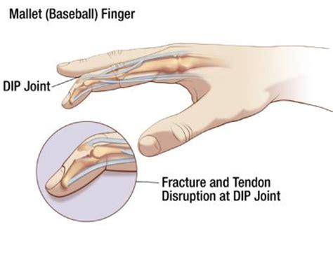 mallet finger advanced hand