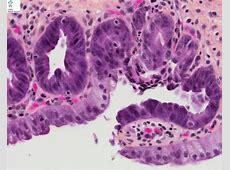 biliary epithelial dysplasia Humpathcom Human pathology
