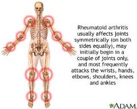 rheumatoid arthritis. Causes, symptoms, treatment Juvenile rheumatoid ...  Juvenile Rheumatoid Arthritis Rheumatoid Arthritis