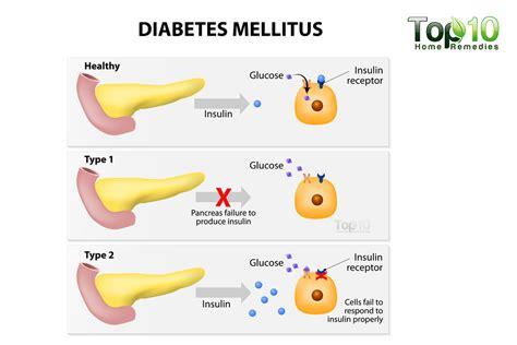 diabetes blood sugar  glucose control colin anne