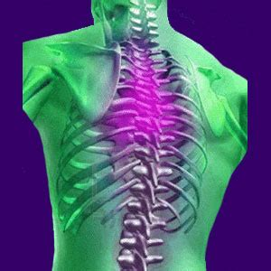 thoracic outlet pain