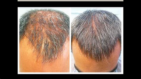 Nizoral Shampoo Hair Loss Before And After  Hair Loss