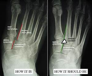 Oblique Radiographs Of A Lisfranc Injury And Normal Right