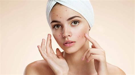 6 Best Homemade Diy Face Masks For Acne Recipes On How