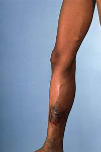 Leg Suffering From Chronic Venous Insufficiency Photograph By