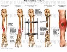 Mid-shaft Tibial Fract...