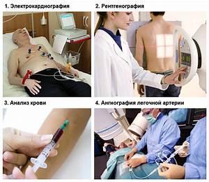 Гипертония легочной артерии лечение