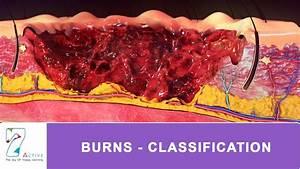 Burns - Classification