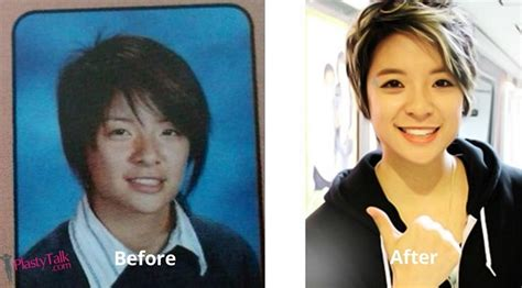 Want to know all about the shocking f(x) plastic surgery