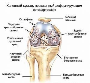 Деформирующий артроз коленного сустава его лечение