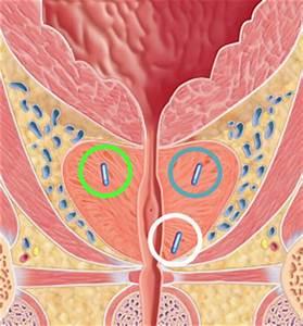 Солевые повязки при лечении аденомы простаты