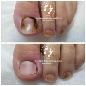 Хирургическое удаление грибка ногтя в москве