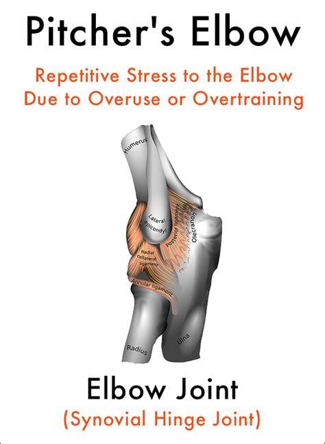pitchers elbow outer  elbow pain symptoms