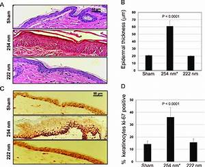 Epidermal Thickness And Keratinocyte Proliferation In Mouse Skin