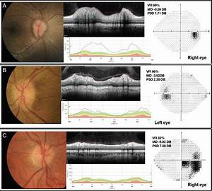 Evolving Evidence In Adult Idiopathic Intracranial Hypertension  Pathophysiology And Management