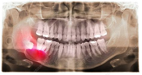 impacted wisdom tooth panoral  ray stock image