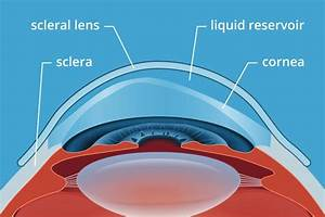 Simple Diagram Of The Cornea