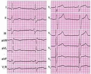 Гипертония левого желудочка сердца что это такое