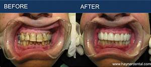 Hayner Dental | Restorative Dentistry - Before and After ...