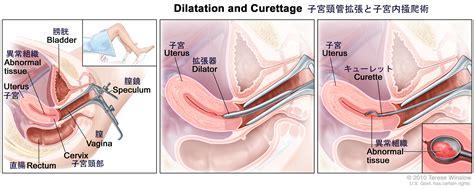子宮 内 膜 ポリープ 放置