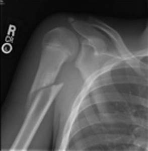 x-ray showing pathological fracture right humerus due to ...