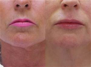 3 Tips for Smoother, Younger Looking Lips