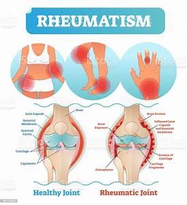 Rheumatism Medical Health Care Vector Illustration Poster