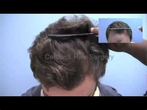 Hair Implants Columbia Sc 29229 Before After Fue Hair Transplant Carolina Hair