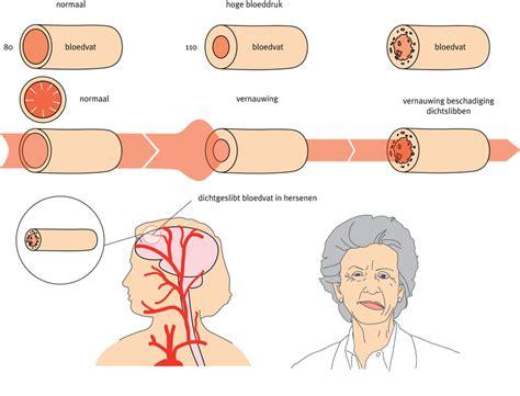 vernauwde bloedvaten klachten
