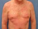 Morbilliform drug reaction | DermNet NZ