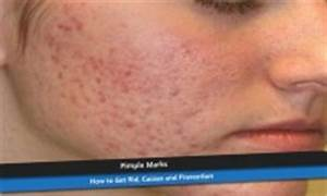 Subclinical Acne on Forehead - How to Get Rid (Treatment ...