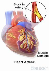 Acute Coronary Syndromes  Heart Attack  Myocardial