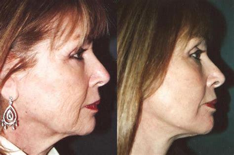 Laser Resurfacing  Miami, Fl  Patient 12543. Business Loan Or Personal Loan. Business Degree Concentrations. Southern Westchester Boces Practical Nursing Program. Refrigerator Repair Alexandria Va. What Is Customer Relation Management. Online High School Academy Moving Richmond Va. Social Analytics Tools How To Buy Penny Stock. How Much Does Liability Insurance Cost